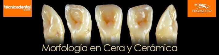 Curso de Morfología en Cera y Cerámica | Alta Técnica Dental